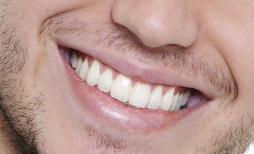 كن مبتسماً.. فهذا من جمال الروح