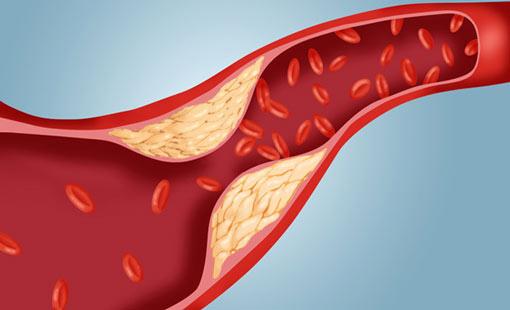رُعب الكوليسترول وطرق الوقاية منه