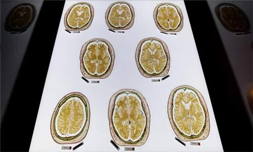 دراسة تثبت أن الفضول يقوي الذاكرة