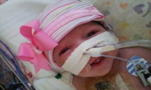 طفلة أميريكة تولد بقلب خارج صدرها