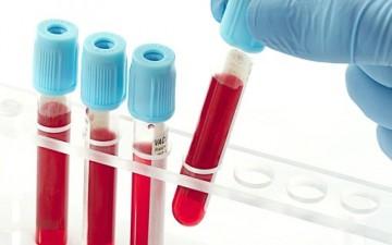 فصيلة دمك تكشفك