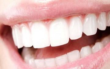 أخطار سوداء تهدد الأسنان البيضاء