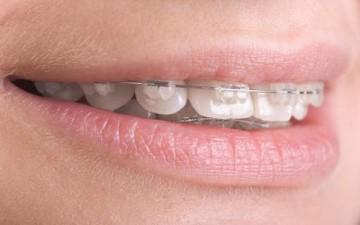 تقويم الأسنان.. أنواعه ومدة العلاج