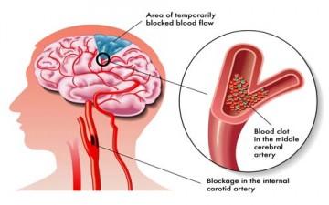 الكدمة الدماغية.. أوّل سبب للوفيات قبل الـ45