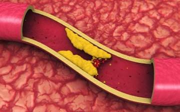 9 حقائق هامة عن الكولستيرول