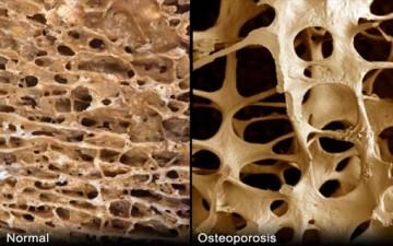 أسباب هشاشة العظام وطرق الوقاية