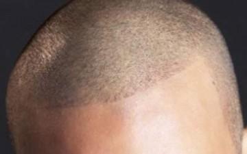 ثلاث طرق جديدة لزراعة الشعر