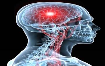 10 نصائح طبيعية للوقاية من السكتة الدماغية