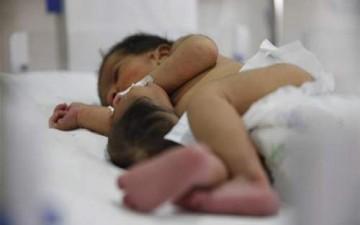 ولادة طفلة برأس ثان في معدتها