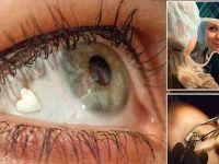 زراعة القلوب البلاتينية في العين.. آخر صيحات الموضة